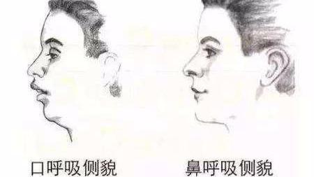 长期用嘴呼吸相貌会变丑?的头图