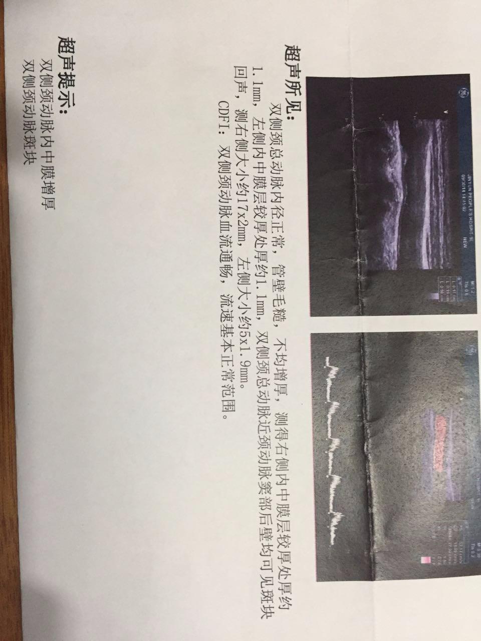 中医辨证论治血管斑块 冯其茂  刘兴志中医怎么样