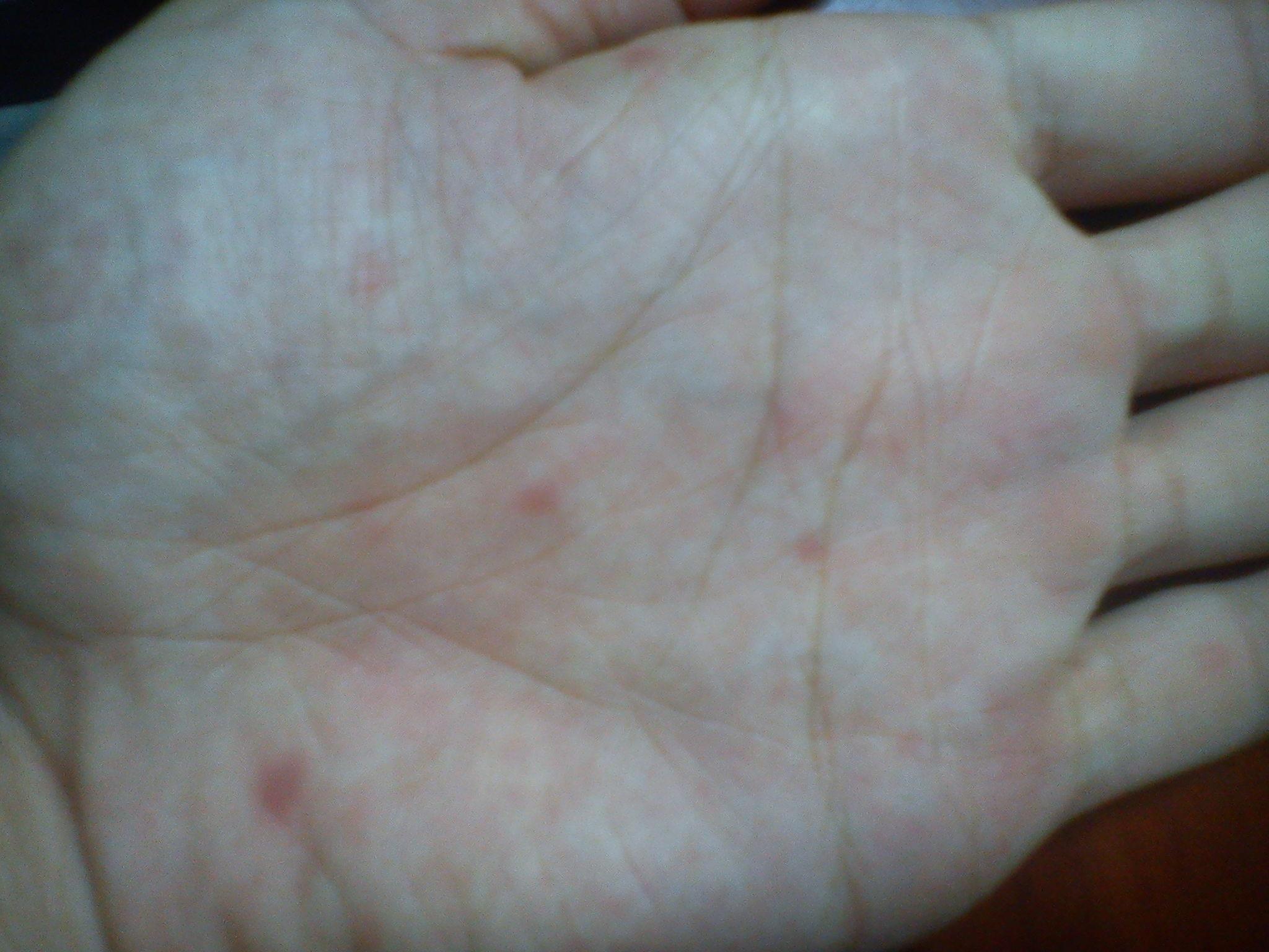 最近左右手掌里长了许多红点点,不痛不痒图片