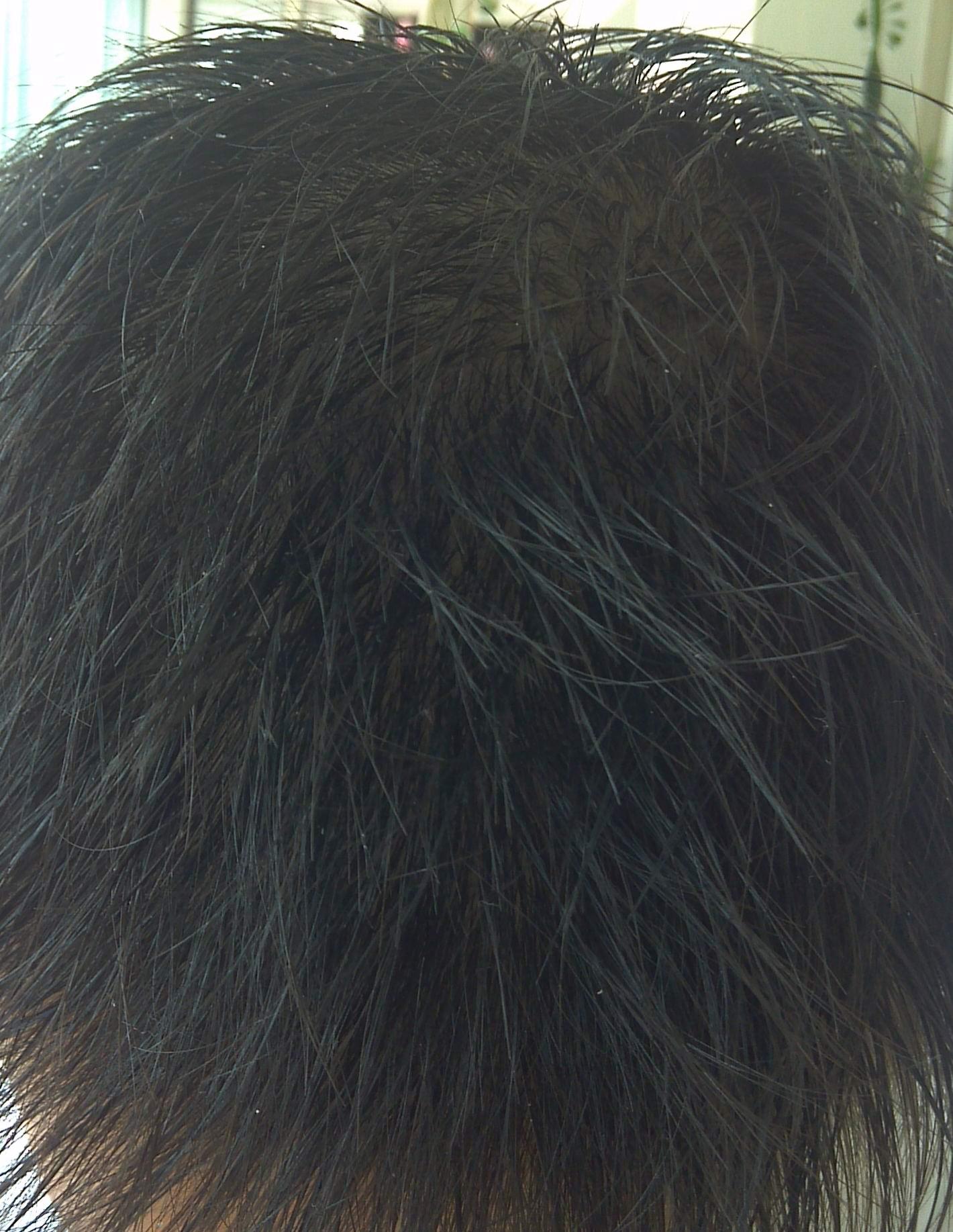 黄15岁片_我15岁,头顶的头发很黄 很细 很稀,还脱发,下面有图,请大家帮看看怎么