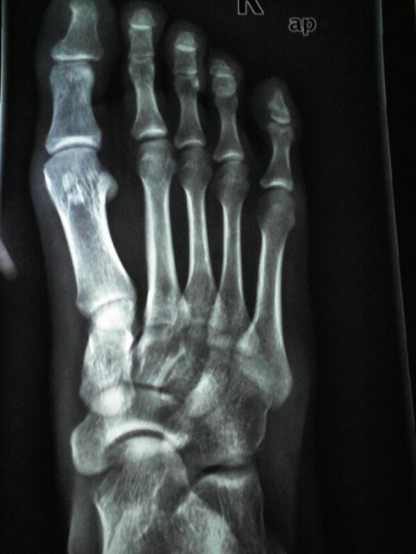 跖骨基底部骨折