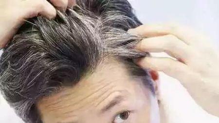?#32557;?#38271;白头发,不是未老?#20154;ィ?#32780;是为了对抗痴呆?