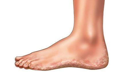 """穿""""洞洞鞋""""容易患上脚气"""