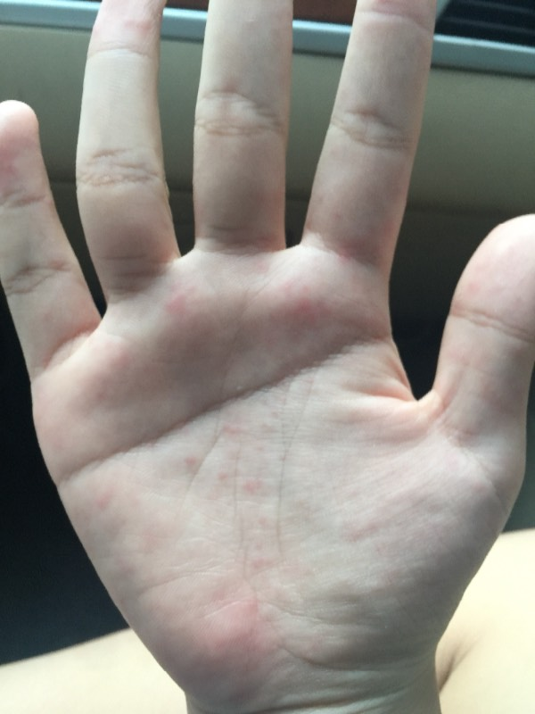 手掌上起红点图片