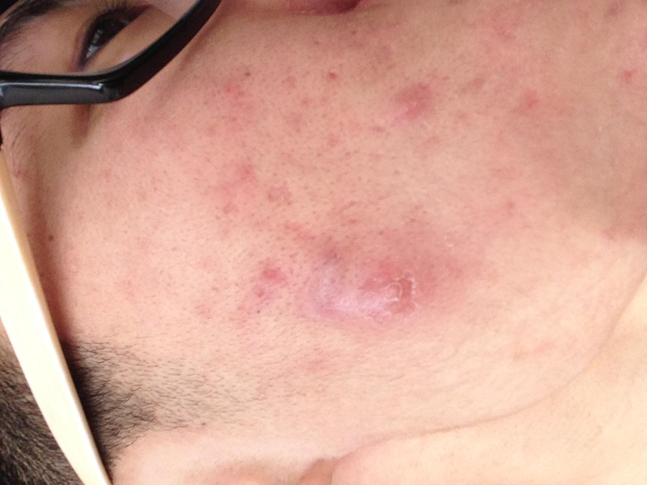 外阴长了个包痛_脸上总是起痘痘不是小痘痘像脓包一样又大又硬还有点疼。好 ...