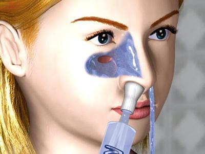 生理盐水洗鼻子的原理_怎么用生理盐水洗鼻子