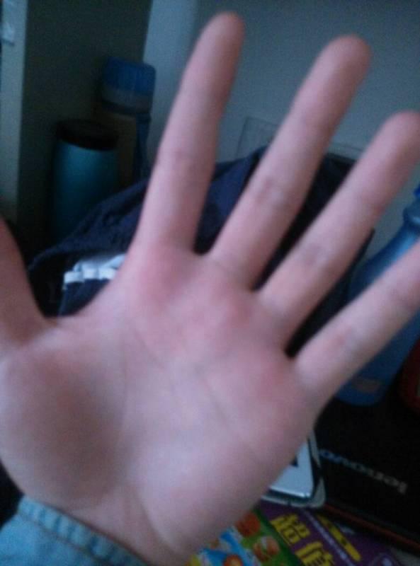 手掌有红点图片
