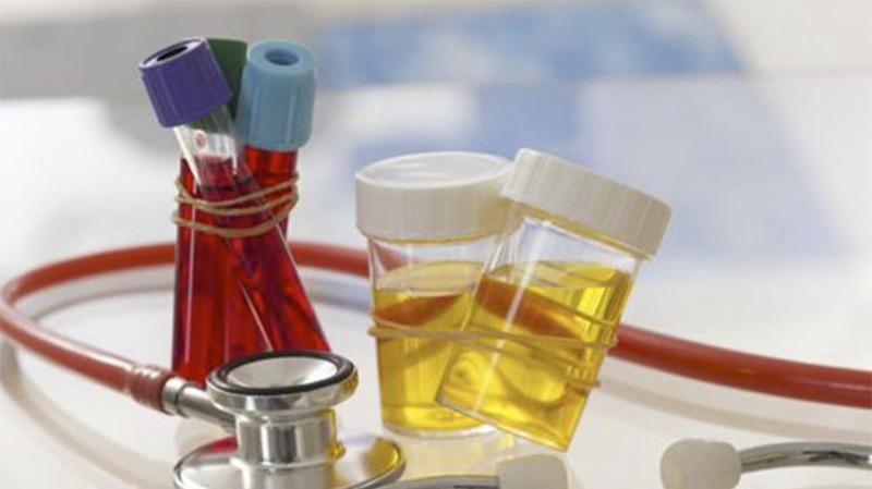 避免尿毒症,降低尿蛋白很重要!