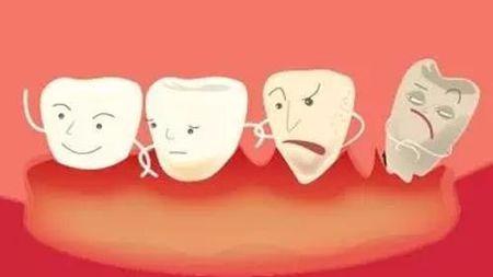 """孩子长了""""两排牙""""?乳牙滞留,被忽视的健康隐患的头图"""