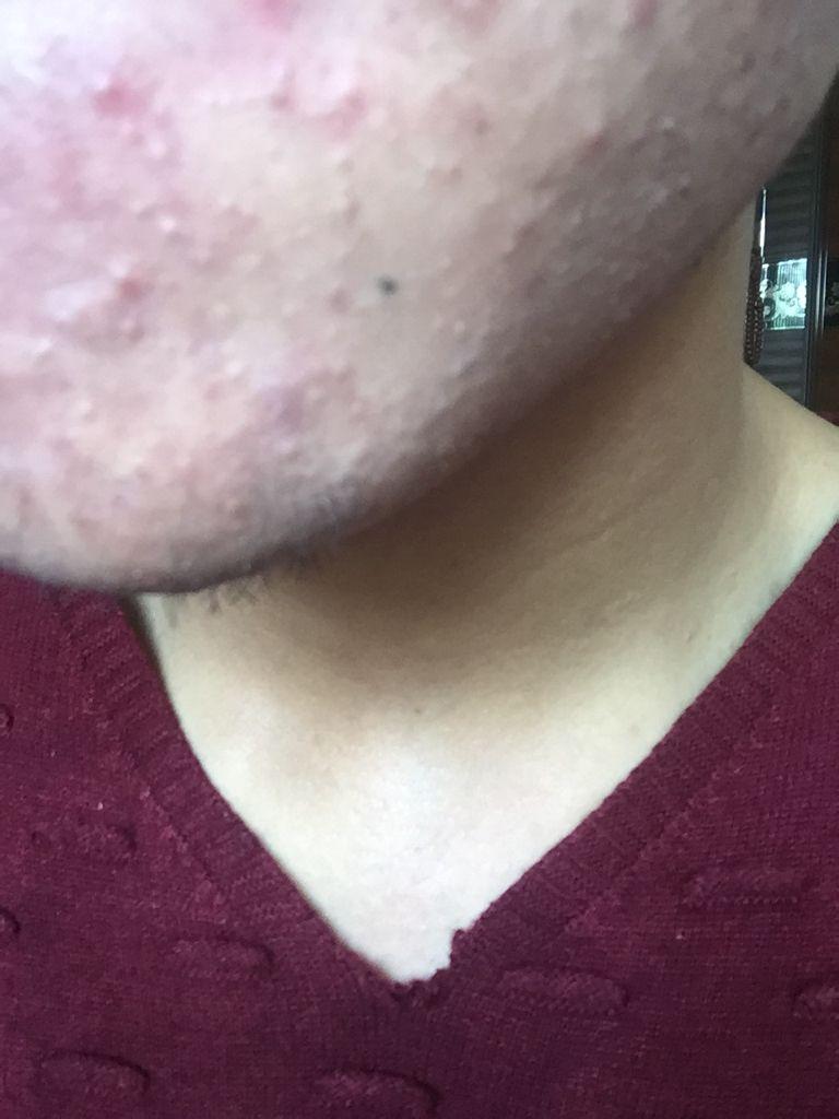 下巴右下角长痘_下巴和嘴角长了很多这种的很小的痘痘这是什么啊?_百度知道