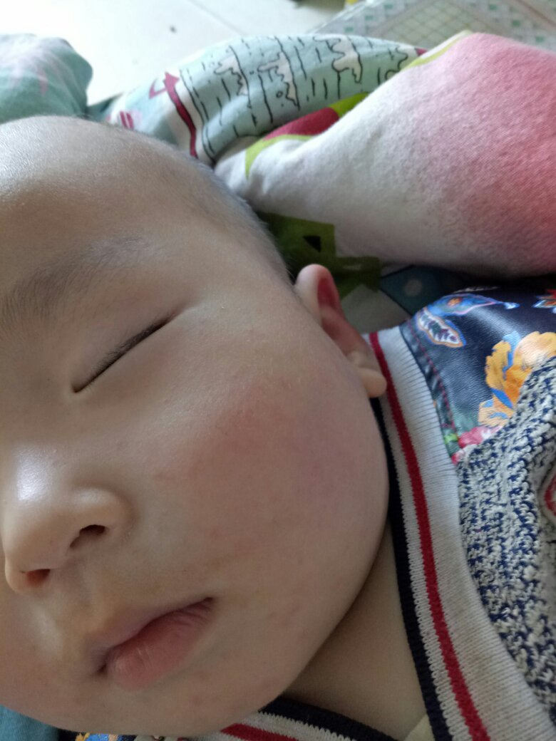 宝宝身上长了好多红点,浑身都是怎么回事图片