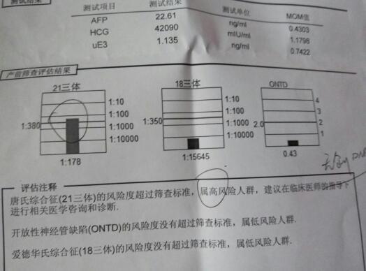 唐氏筛查的原理_每20分钟就有一个唐氏儿出生 孕妈妈产前筛查必不可少