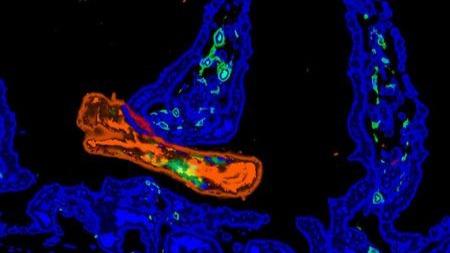 这些虫感染20亿人!如何平衡免疫和炎症?