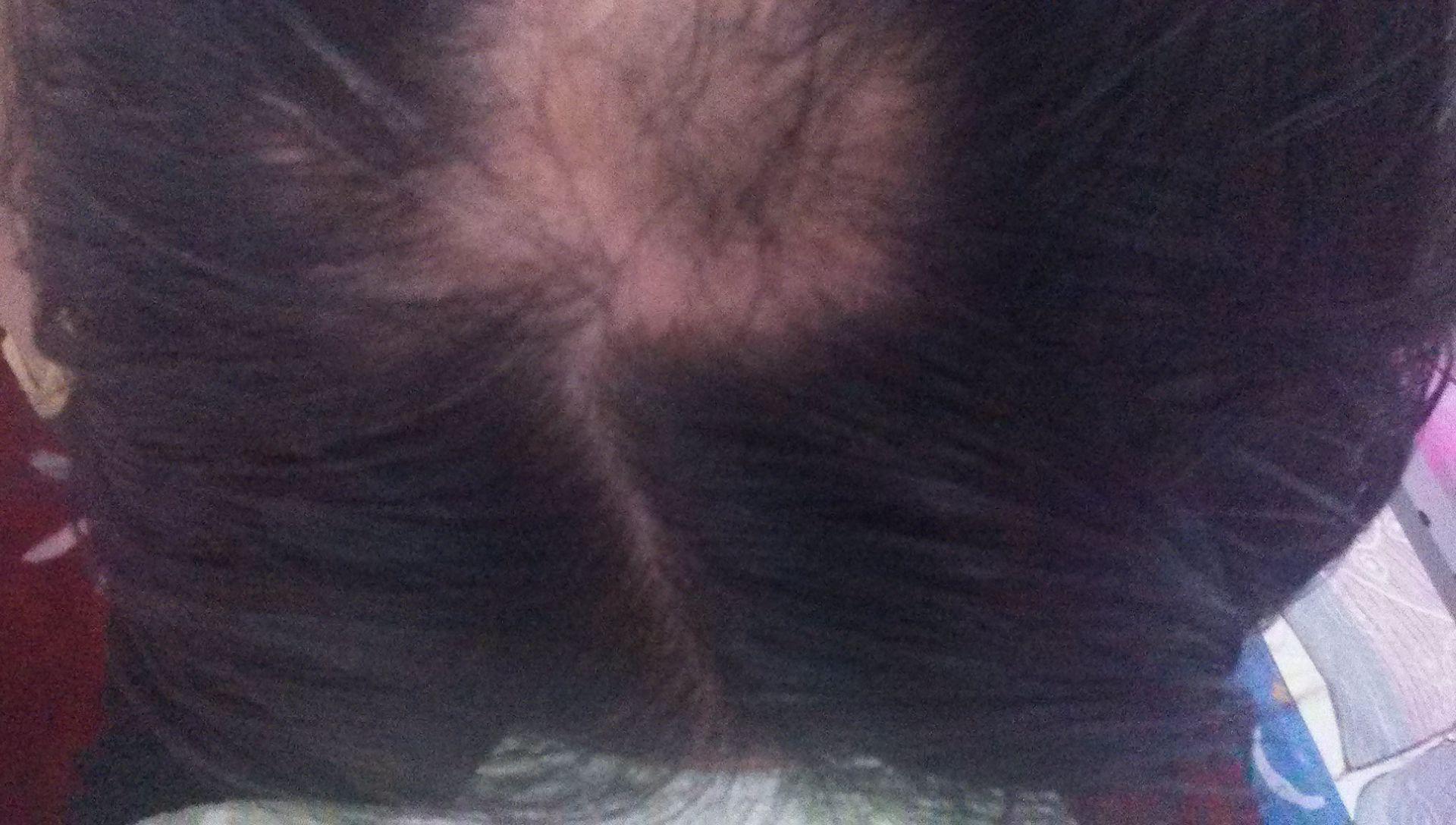 梦见自己的头发掉了一大片 女人梦见自己头发掉了