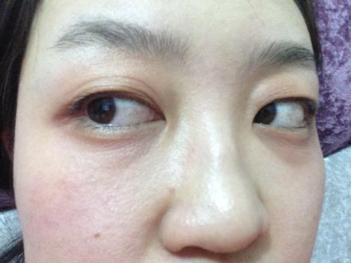 眼部皮肤过敏_荨麻疹过敏眼部消肿后出现眼部皮肤松弛和深深的皱纹怎么办 ...