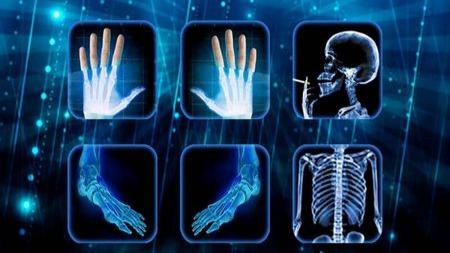 你的骨骼发育失调?可能和摄入的抗生素有关