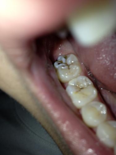 蛀牙怎么办_是不是蛀牙了啊 牙齿表面有裂痕且发黑 到底是什么回事啊 怎么办啊 请