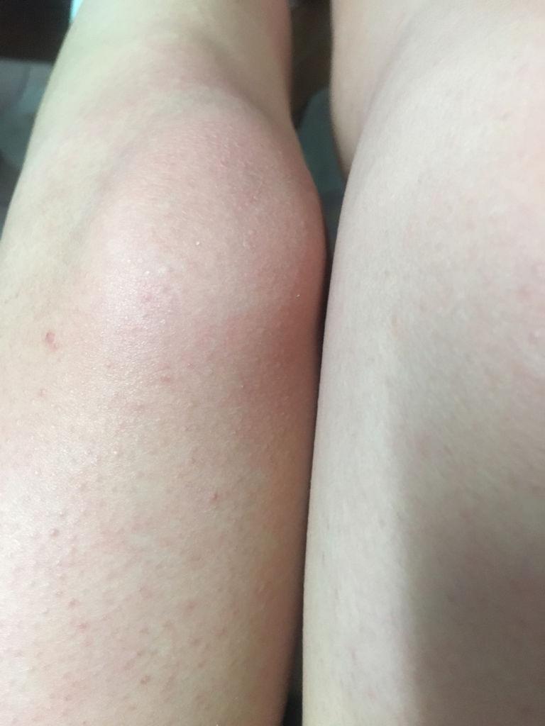 梅毒腿上的红点图片 梅毒疹刚发生的照片