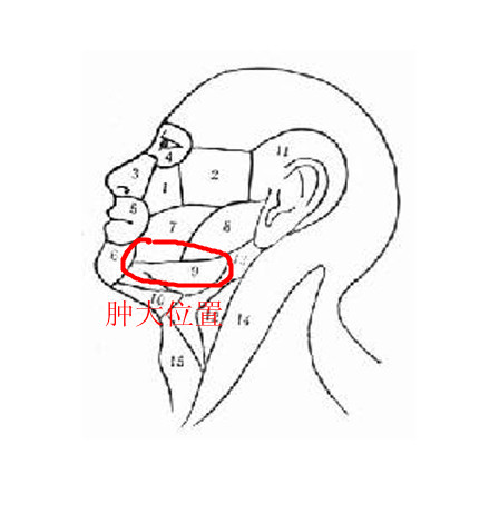 淋巴炎_我这症状是腮腺炎还是淋巴炎?