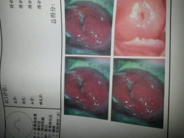 宫颈炎 治疗_宫颈糜烂三级 还有阴道炎 需要怎么治疗?要打吊针吗?_百度知道