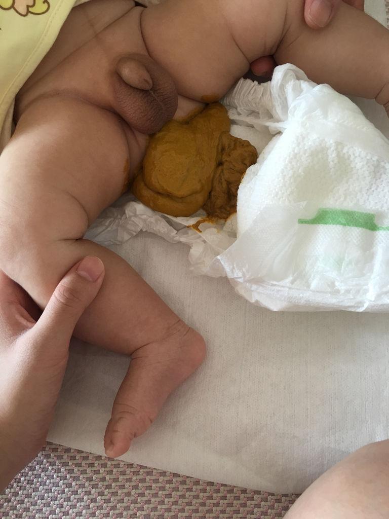 满月月宝宝拉黄水大便