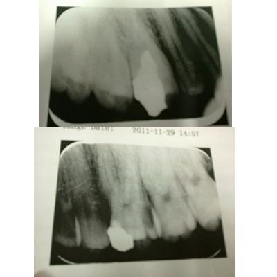 我要看色情片_帮我看一下我的牙片,要不要做根管治疗呀_百度知道