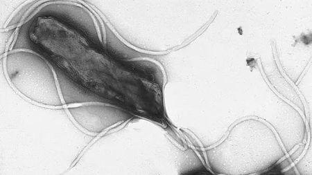 全球一半人感染幽门螺杆菌,我们该害怕么?