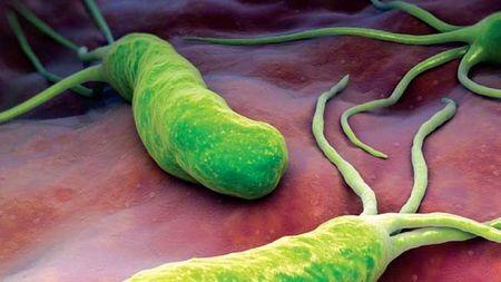 幽门螺杆菌只是普通细菌吗?其实还可以致命
